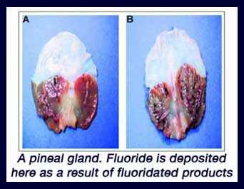 Pineal Gland Calcification