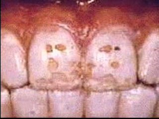 Teeth after fluoride treatment